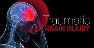 Brain Injury Attorneys Mercer County NJ