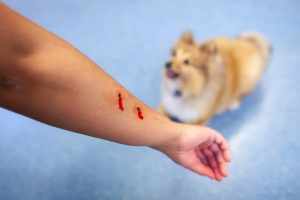 Recovering Compensation for Dog Bite Injuries in Mercer County